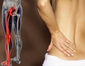 Ingorgo di parti posteriori di nervi di reparto cervicale di una spina dorsale