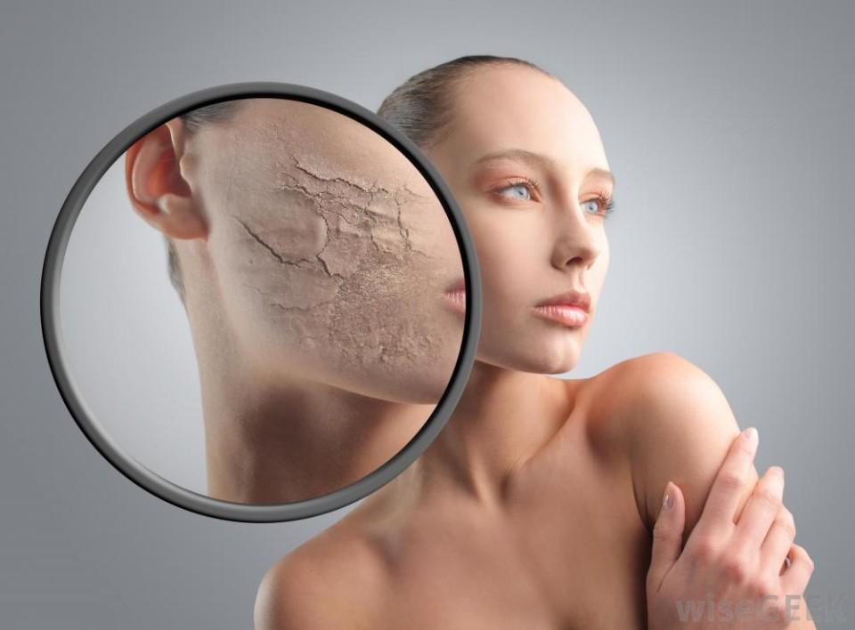 combattere la pelle secca